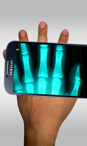الأشعة السينية الماسح المزحة